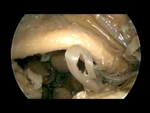 Prostatas simptomi bērniem