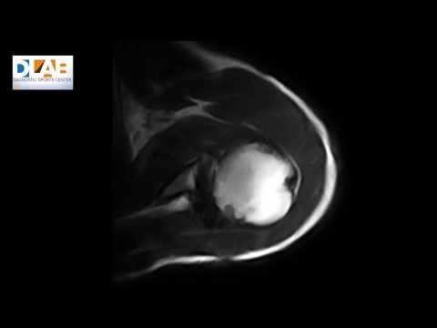 Spalla gravemente ferito e il collo osteocondrosi