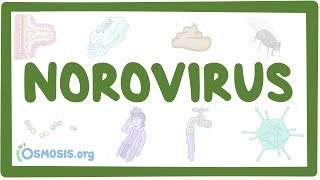 Norovirus - causes, symptoms, diagnosis, treatment, pathology