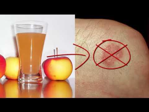 Die Mittel gegen die Hautentzündung und das Ekzem