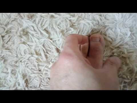 Unguento de um fungo de estômago