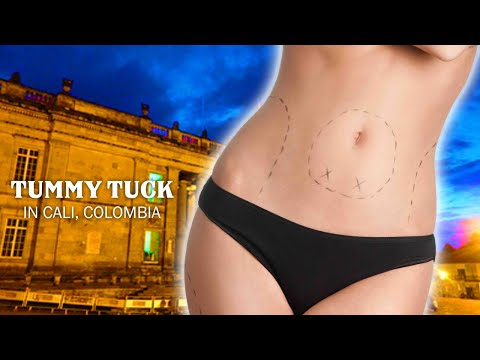 Effective-Package-for-Tummy-Tuck-in-Cali-Colombia