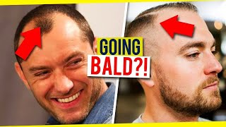 How To Tell If Your Hairline Is Receding | Signs of Balding In Men