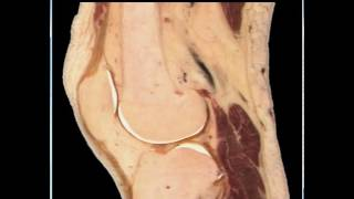 Virtual Dissection 2 The Knee