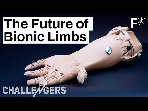 The New Generation of Prosthetics