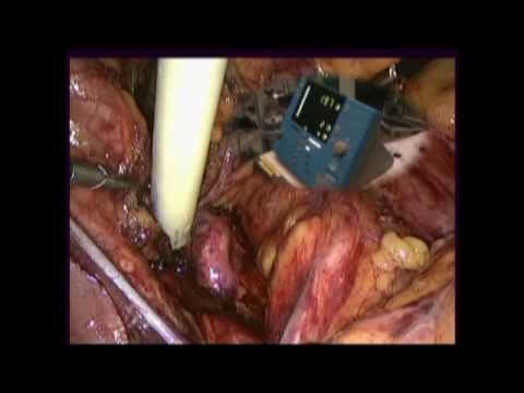Le cancer de la prostate est une tumeur pression sur les terminaisons nerveuses