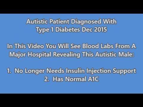 Juckreiz auf der Haut von Diabetes
