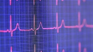 Can Sudden Cardiac Arrest Be Prevented?