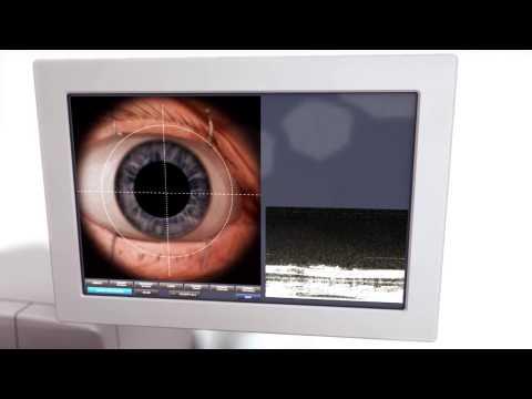 Léčba prostaty masáže videa