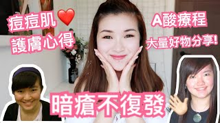 暗瘡不復發! A酸療程+多年護膚心得+推介好物| cheerS beauty【中字】