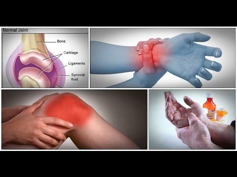 Scharfe Rückenschmerzen im Lendenwirbelbereich der Wirbelsäule über den linken