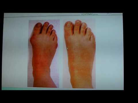 รักษากระแทกบนเท้าของหัวแม่ตีนโดยไม่ต้องผ่าตัด