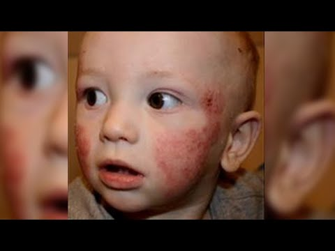 Argilla bianca a dermatite atopic