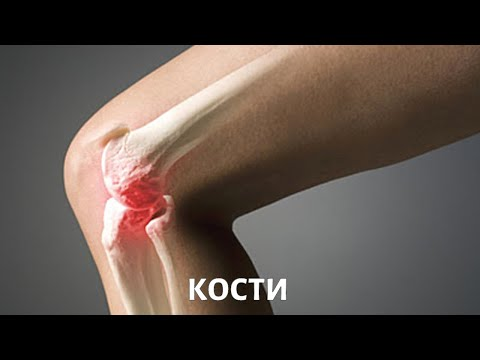 Заболевания костей: профилактика, диагностика, лечение