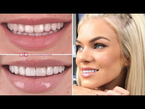 Chloe Szep's New Smile With Dental Boutique