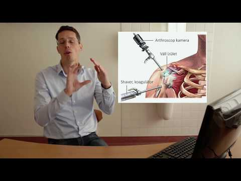 Maclura az artrózis kezelésében