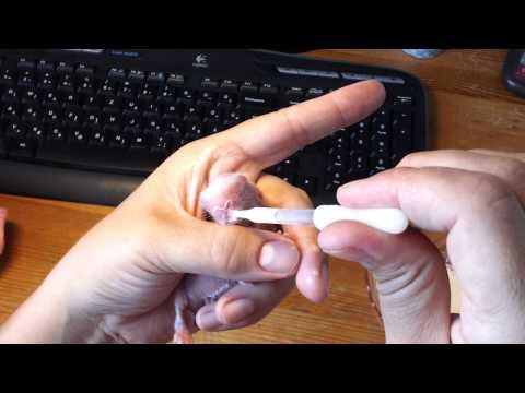 Szarvasmarha szalagféreg fertőzés forrásai