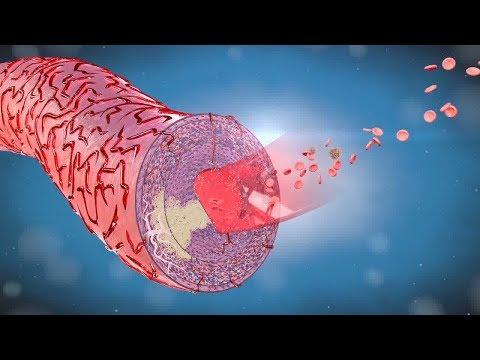 Blutdruck in dem Hohlraum Absenken der Kapsel führt zu