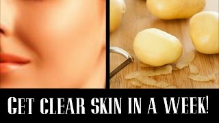 How to get Clear Glowing skin using Potato Juice | EASY & FAST