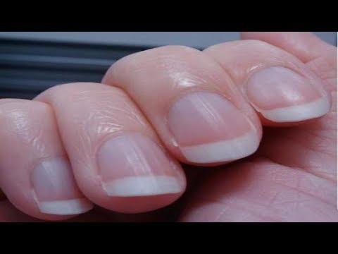 Der Lack der gribok der Nägel behandelt