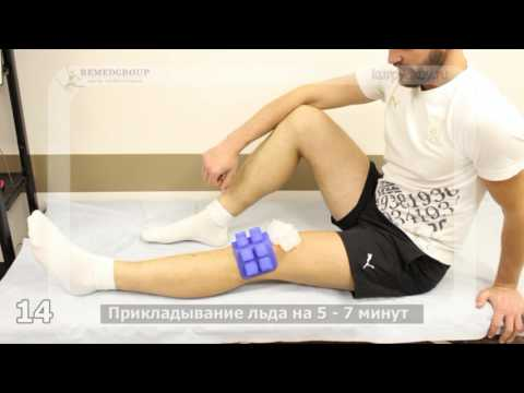 Реабилитация: артроскопия коленного сустава. Часть 2.