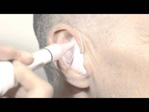 Taking an Ear Impression
