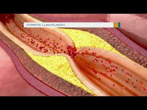 Giardiasis diéta a menü kezelésében