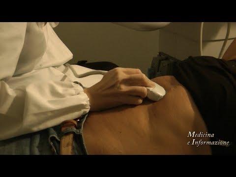 cicatrici per chirurgia prostatica davinci