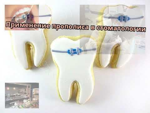 Применение прополиса в стоматологии