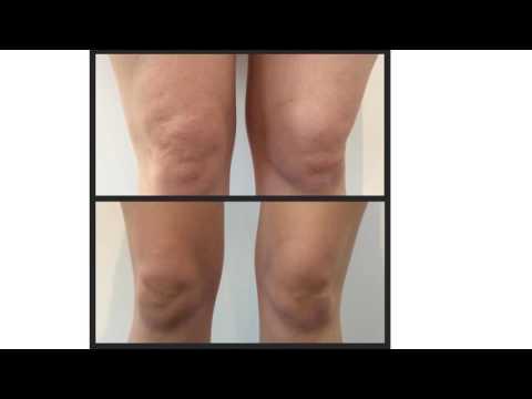 Deformacja stóp artroza