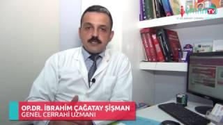 Laparoskopik Cerrahi Nedir?