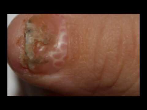 Als panariziju auf den Nägeln zu heilen