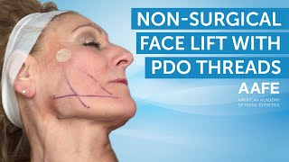 Non-Surgical Facelift with PDO Lifting Threads | AAFE