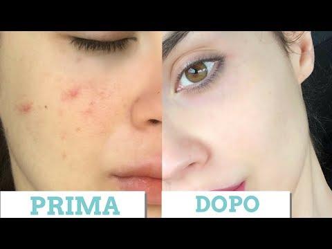 Le creme chiarificando la pigmentazione su una faccia