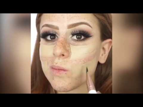 Pag-aalis ng freckles sa lancer laser ude