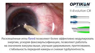 Ультразвуковая факоэмульсификация с имплантацией предустановленной в инжекторе ИОЛ Rayner RayOne Trifocal