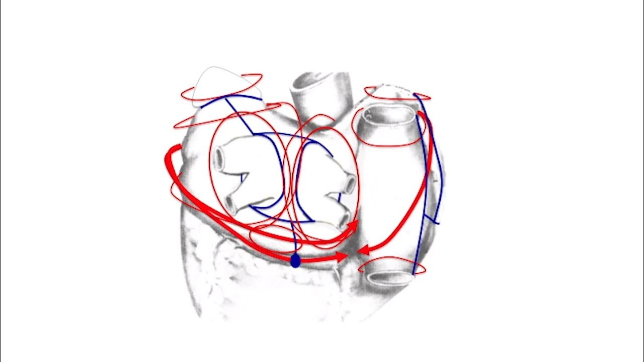 Concomitant Cox-Maze IV Procedure & Mitral Valve Repair Performed by Dr. Marc Gerdisch