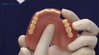 入れ歯のひび割れを見つける