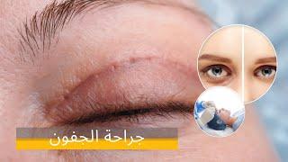 Video جراحة الجفون