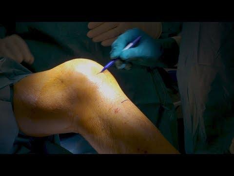 Volksheilmittel für Arthrose der Hüfte