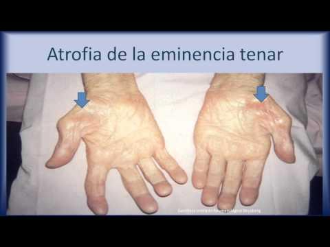 Artroza deformantă a tratamentului medicamentos articulației umărului