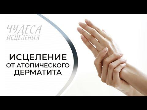 Исцеление от атопического дерматита. «Чудеса исцеления» (09)