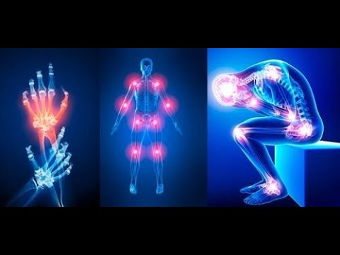 Tratamentul ligamentului colateral al genunchiului