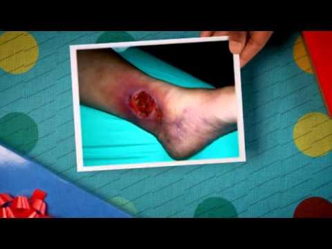 La posizione di vene che ferisce diffondersi