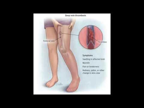 Sintomi di video di varicosity
