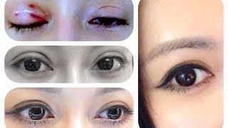 ♛[QQ整型經]♥ 我的雙眼皮整容分享♥ My Double Eyelid Surgery