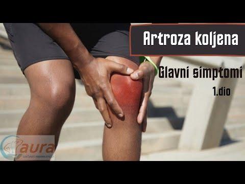 Artroza simptomelor gleznei și a pastilelor de tratament