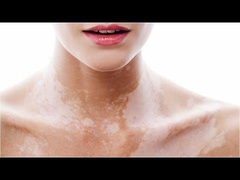 Le maschere per candeggiare di pelle secca