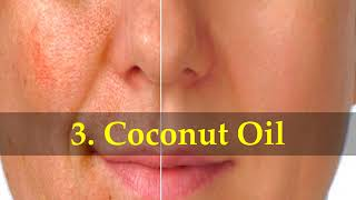 How to Get Rid of Blotchy and Uneven Skin