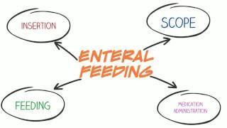 Enteral Feeding